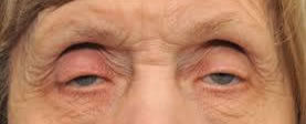 Elderly Diplopia