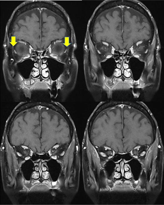 MRI - Sagging Eye