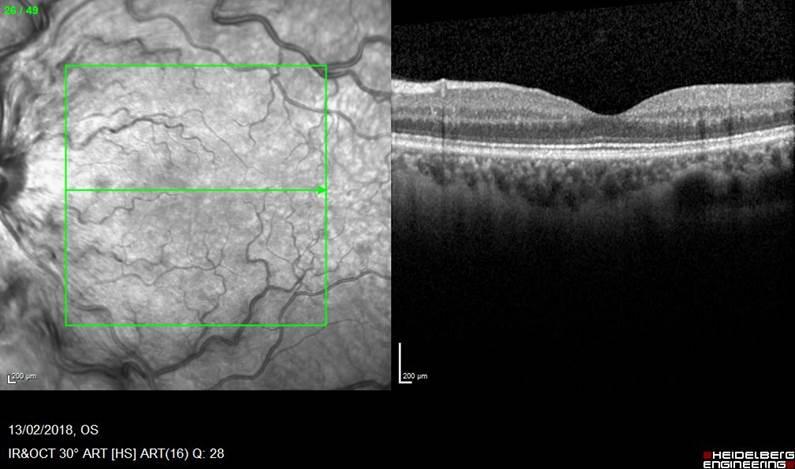 Rapid Resolution of Unilateral Haemorrhagic Retinopathy in ...