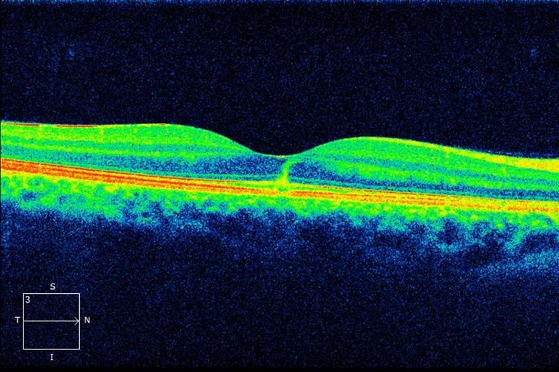 Bilateral Solar Maculopathy3