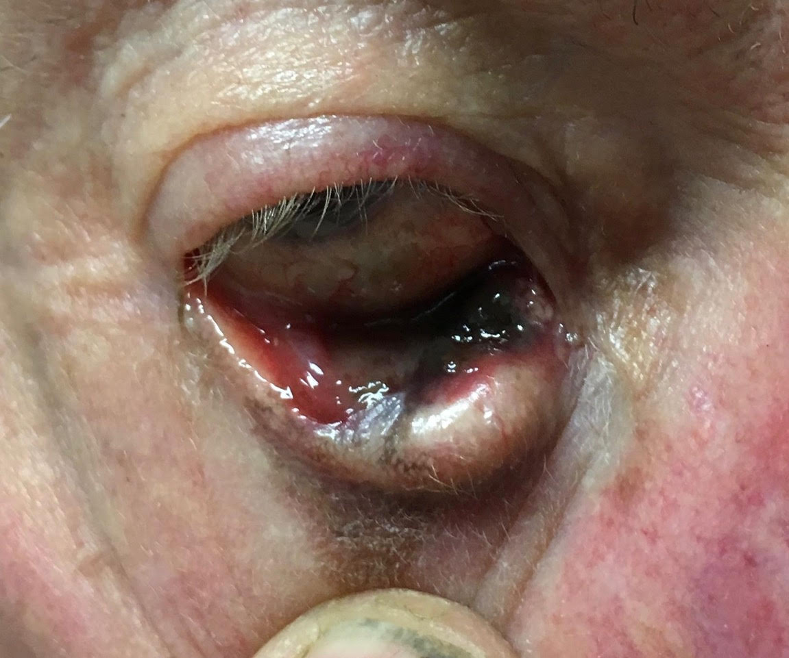 Quiz Challenge – 70yo With Lower Lid Lesion