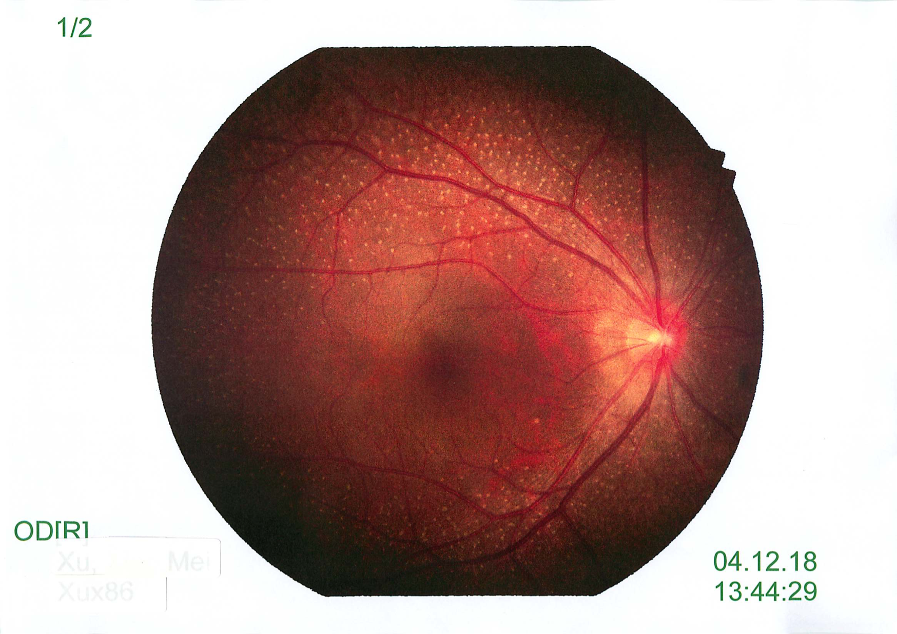 Quiz Challenge – 30yo With Reduced Vision And Night Vision Issues