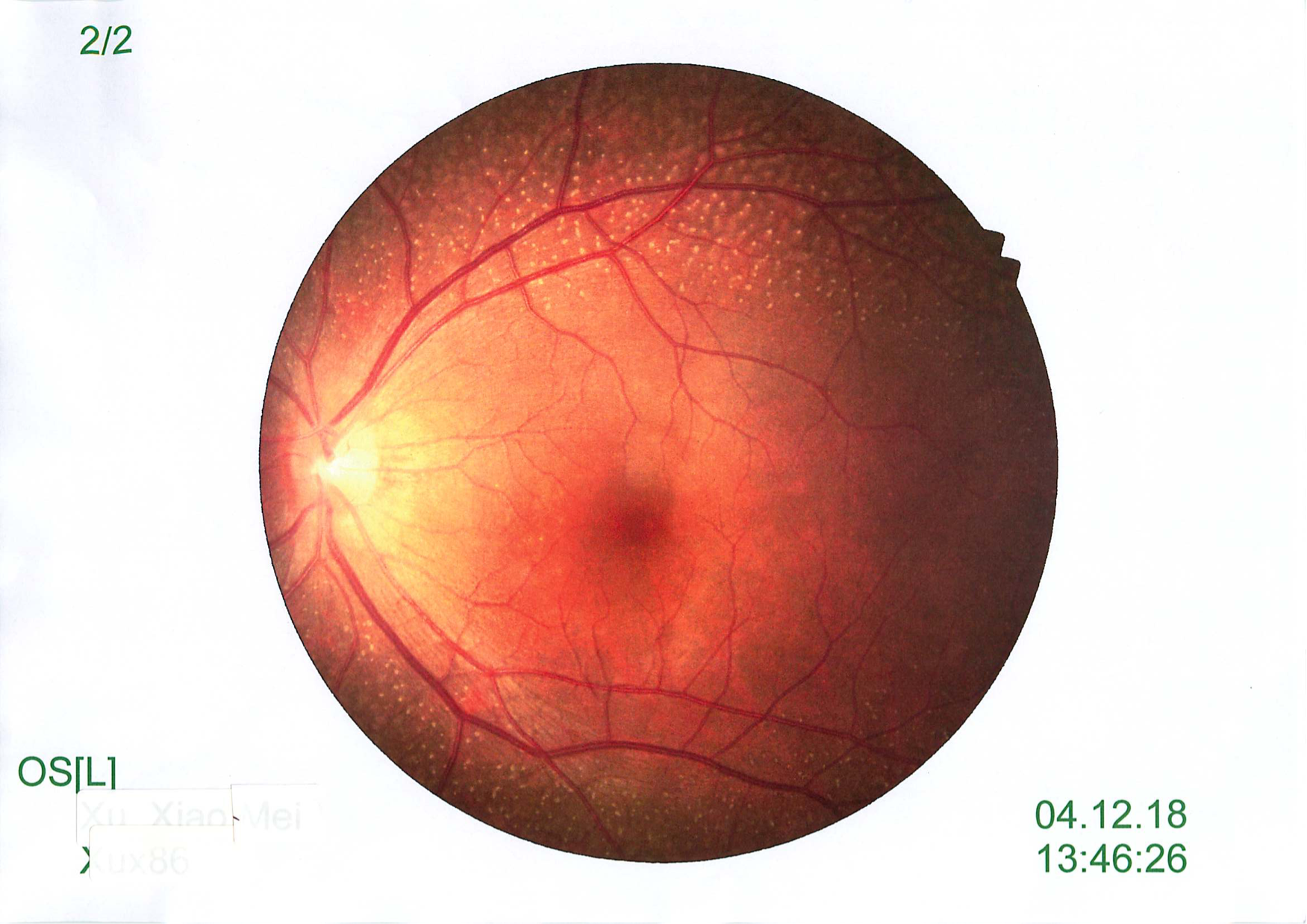 Quiz Challenge - 30yo with Reduced Vision and Night Vision