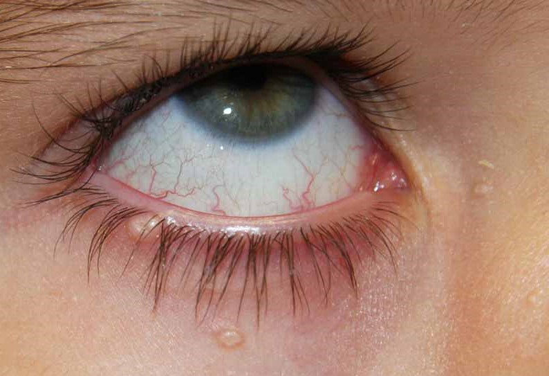 Quiz Challenge – Do You Know Why This Child Has Recurrent Red Eye?